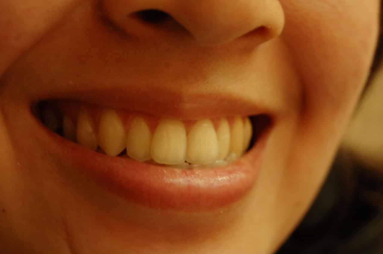 denti sorriso prevenzione fluoro