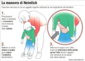 Manovra di Heimlich, disostruzione pediatrica, strozzamento, soffocamento