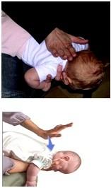 pacche dorsali, disostruzione pediatrica, strozzamento, soffocamento
